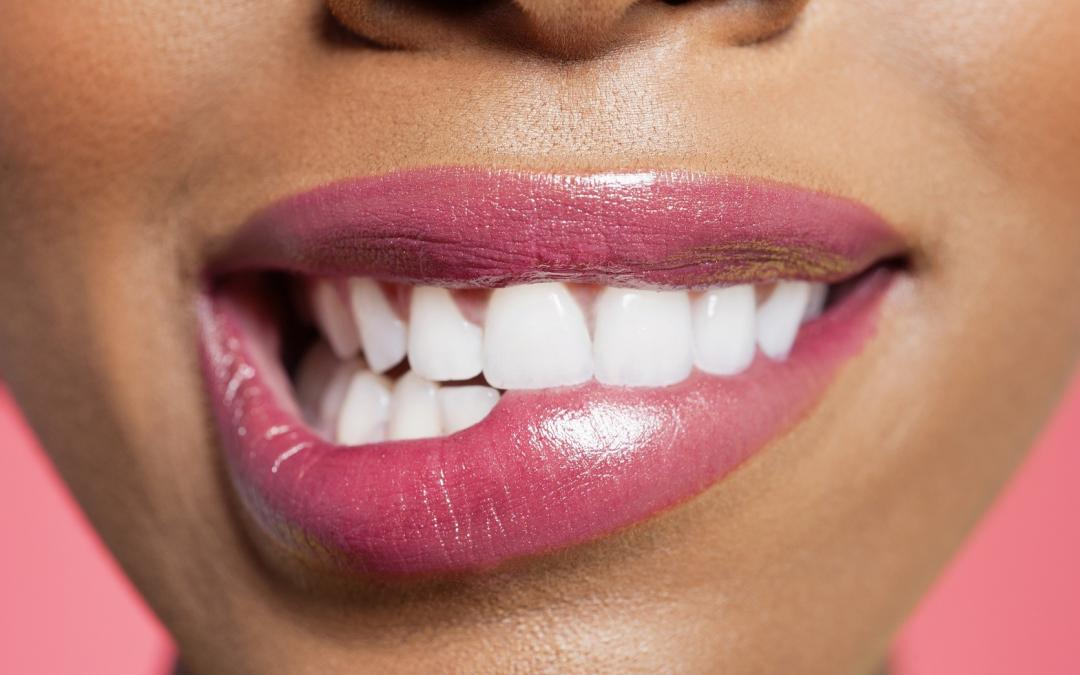 Professional Tooth Whitening and Your Wallet